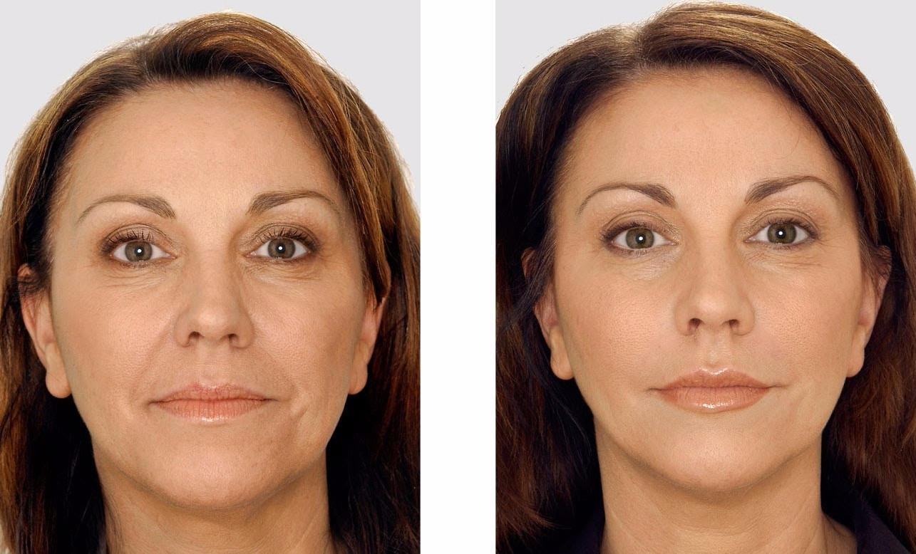 Фото до и после - разглаживание морщин, благодаря входящему в состав слизи коллагену
