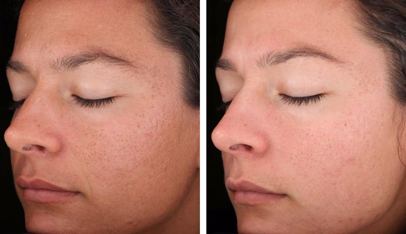 Фото до и после терапии улитками - борьба с угревой сыпью и другими проблемами на коже
