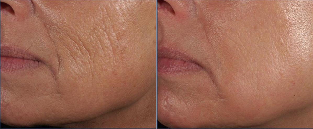 Фото до и после улиткотерапии - подтяжка лица, избавление от старческих морщин