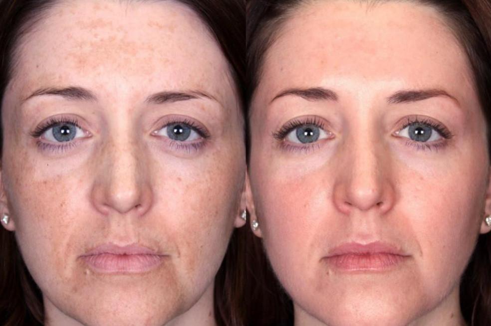Фото 1. Если у женщин ярко выражена пигментация на коже лица - химический пилинг миндальной кислотой поможет решить проблему