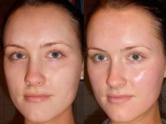Фото 3. Если пилинг сделан правильно, то кожа приобретает естественный здоровый блеск, как на фото справа