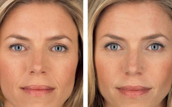 Фото 2. До и после процедуры 3D-мезонитями