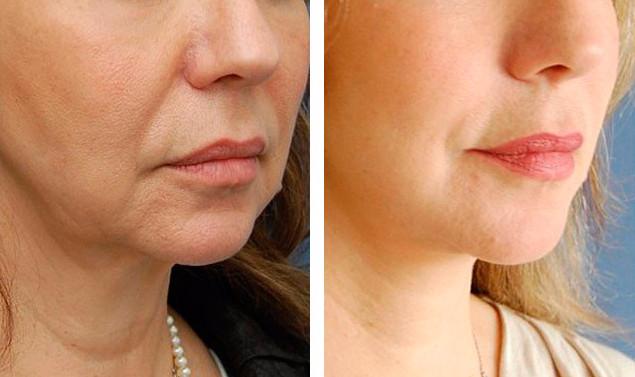Фото 4. До и после введения мезонитей под кожу