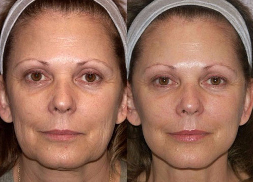 Фото 5. Особенно заметен эффект от3D-мезонитями тредлифтинга на лице с явно выраженными признаками старения кожи