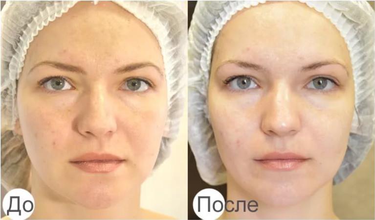 После процедуры становятся менее заметны шрамы от угревой сыпи на лице