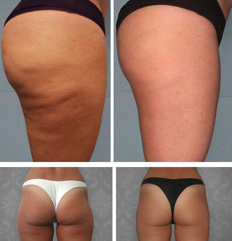 Судя по фото до и после, женщинам действительно удается вернуть себе былые формы, выровнять контур кожи