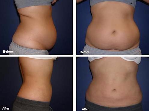 Фото до и после процедуры диодным липолазером