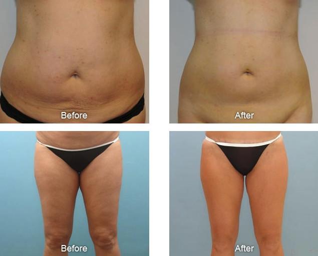 Фото до и после процедуры липолазером