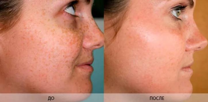 Каким бы кремом вы ни решили отбелить кожу лица - сделать это с первого раза не получится. Эффект до и после будет отличаться не кардинально.