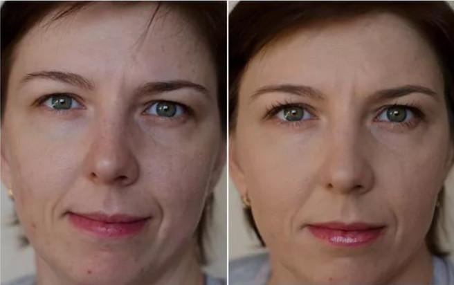 После использования отбеливающего крема, тон кожи лица выравнивается