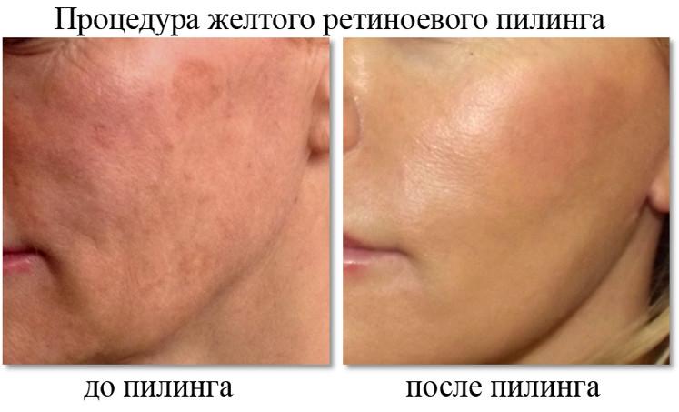 До и после пилинга лица