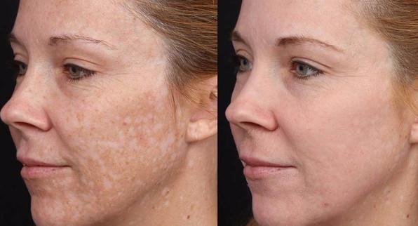 До и после ретиноевого пилинга