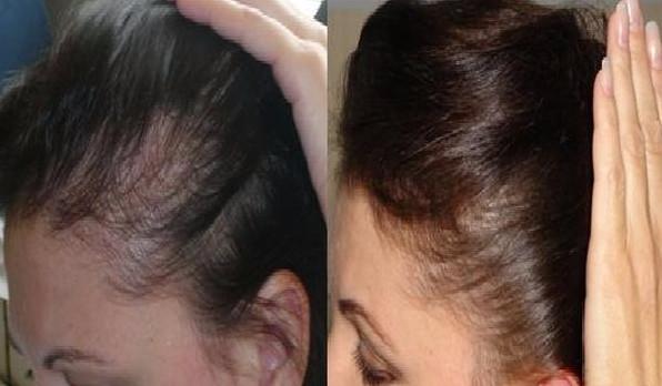 До и после процедуры аппаратом Дорсенваля