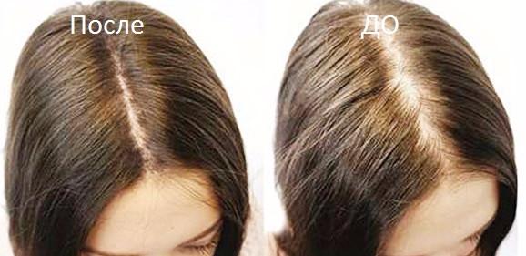 До и после дарсонвализации волос