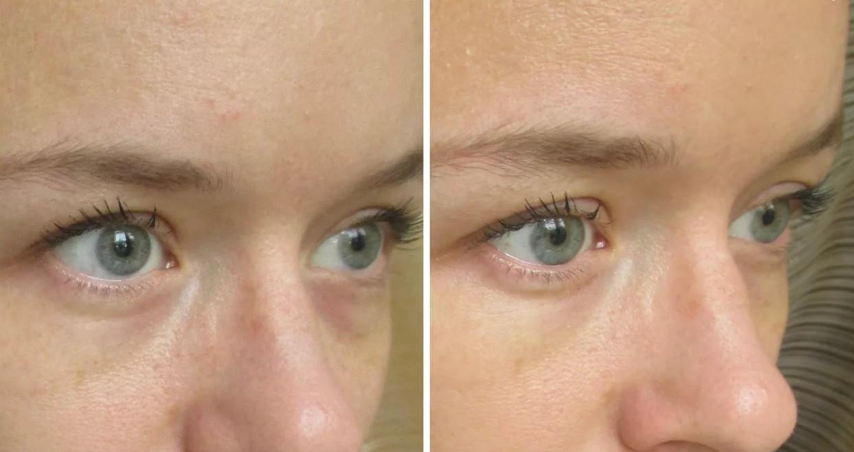 Старайтесь добиться естественного выравнивания цвета кожи на лице, как с этим справляетсяluxury nude effect вы можете оценить на фото