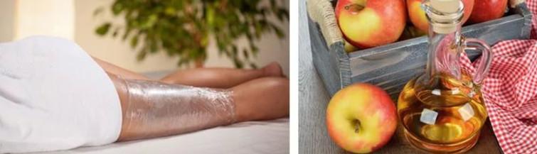 Обертывание с яблочным уксусом довольно эффективно, судя по отзывам, помогает избавиться от растяжек и целлюлита на проблемных участках тела
