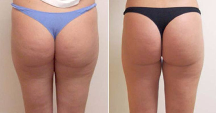 Фото до и после будут отличаться значительнее. если к обертыванию и массажу с яблочным уксусом добавить физические нагрузки и диеты