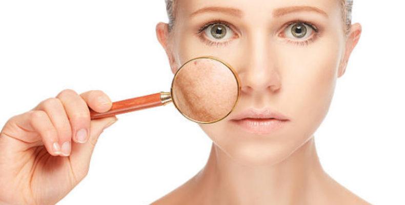Отбеливающий крем для лица от пигментных пятен